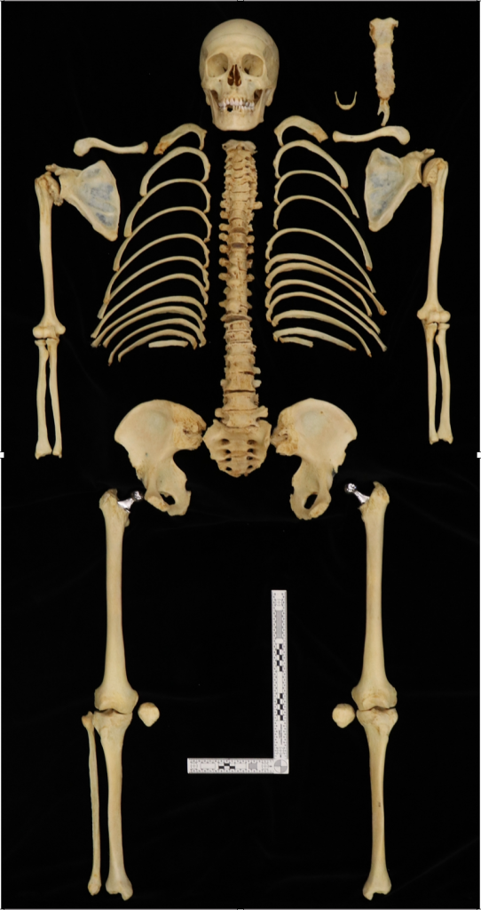 Why Anatomical Donation Should be Offered at You Funeral Home. Donor: Geriatric Female with bilateral hip replacement and rheumatoid arthritis. Image courtesy of Dr. Heather Walsch-Haney, Chair- Department of Justice Studies at Florida Gulf Coast University.